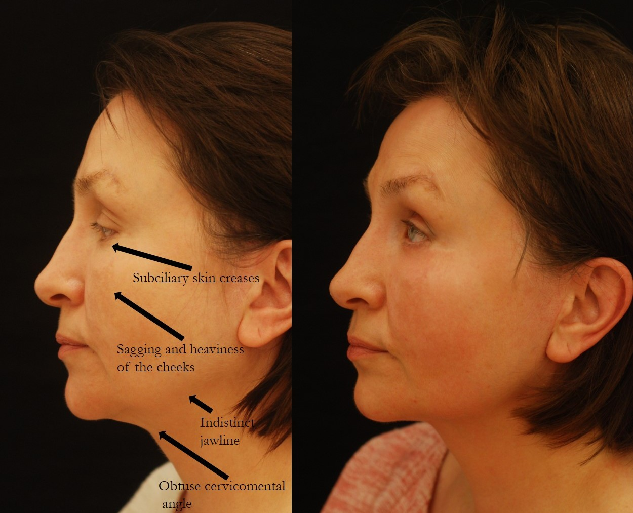 Actual patient of Dr. Devgan, before and after revision facelift, necklift, and lower eyelid blepharoplasty. This result is shown 6 weeks after surgery.