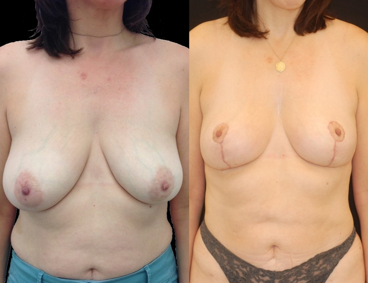 Actual patient of Dr. Devgan, before and after breast lift (mastopexy).