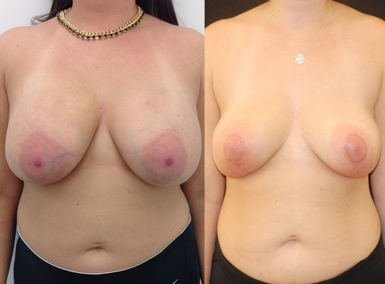 Actual patient of Dr. Devgan, before and after breast lift (mastopexy) and implant removal.
