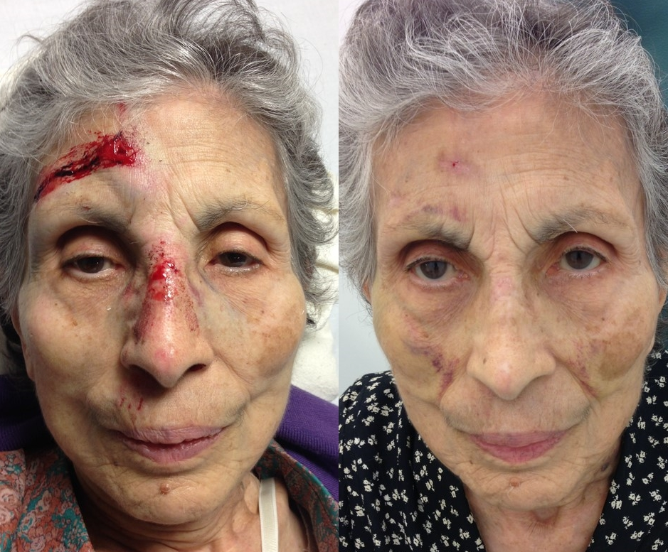 Actual patient of Dr. Devgan, before and after reconstructive nasal surgery