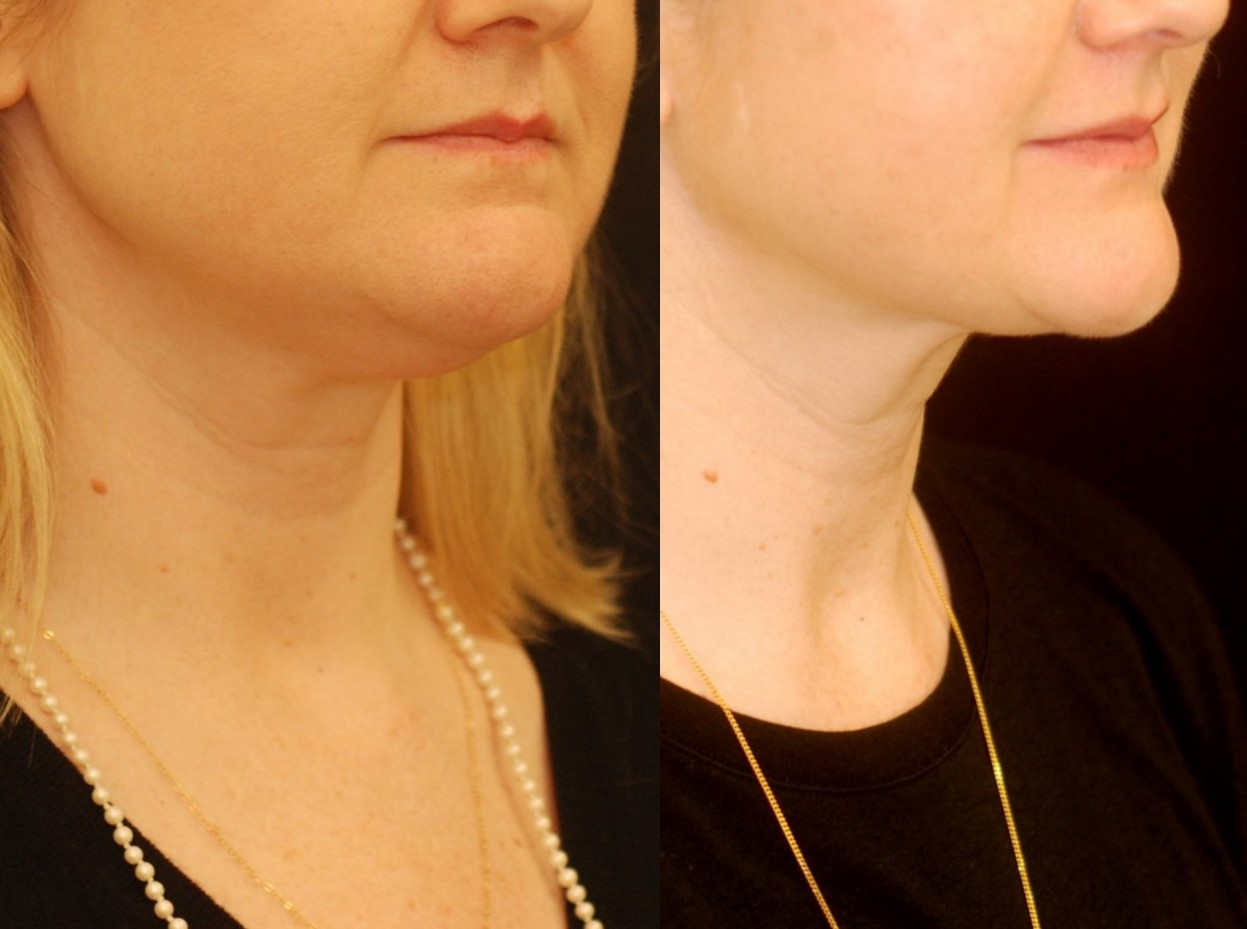 Actual patient of Dr. Devgan, before and after under-the-chin liposuction