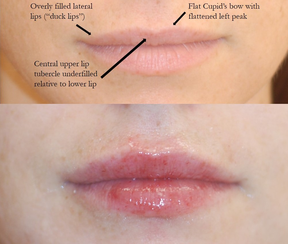 Actual patient of Dr. Devgan, before and after corrective lip augmentation of another doctor's work.