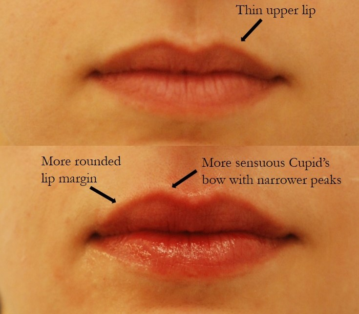 Actual patient of Dr. Devgan, before and after first time lip augmentation