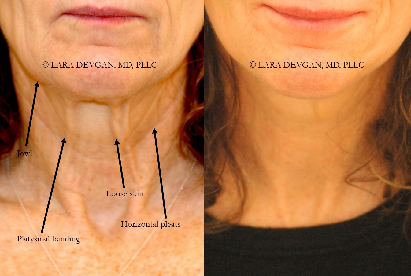 Actual patient of Dr. Devgan, before and after facelift and necklift (short-scar approach) with fat grafting.
