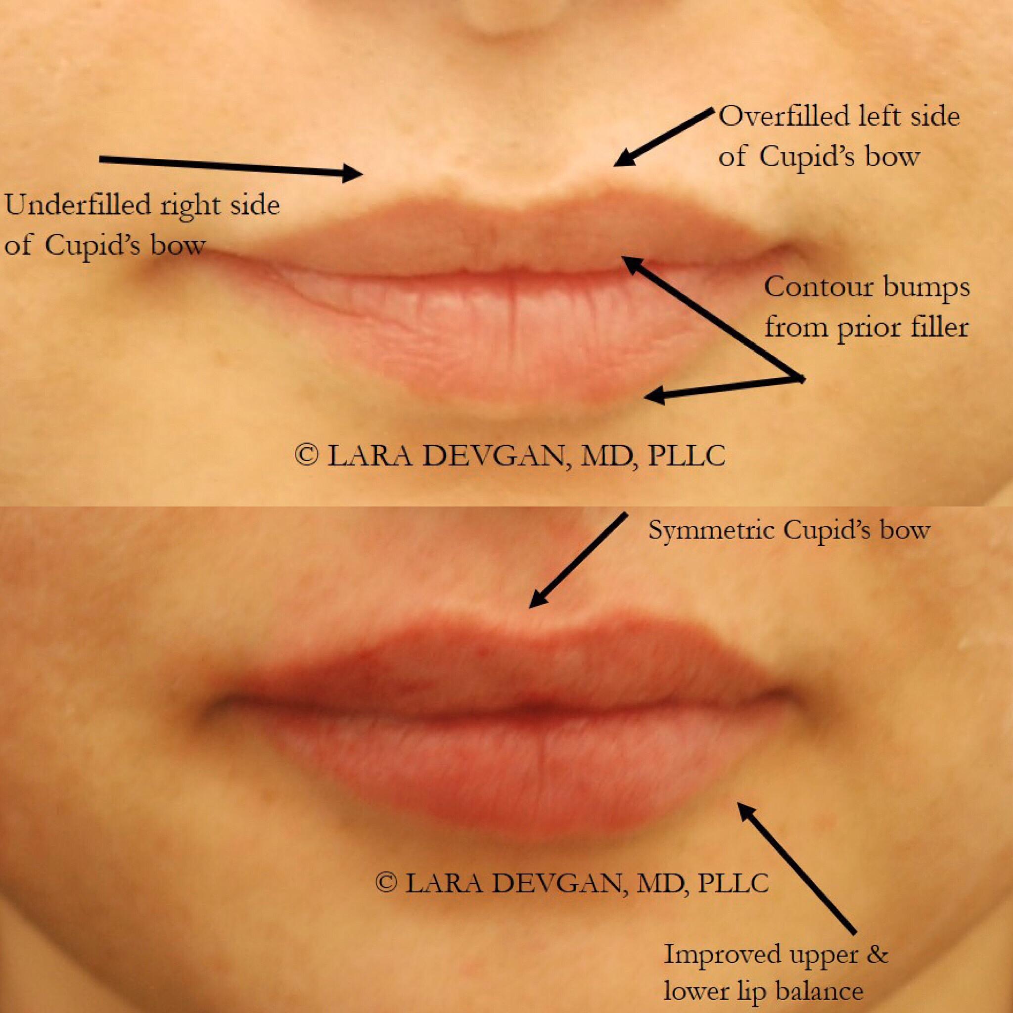On little lips bumps White Bumps