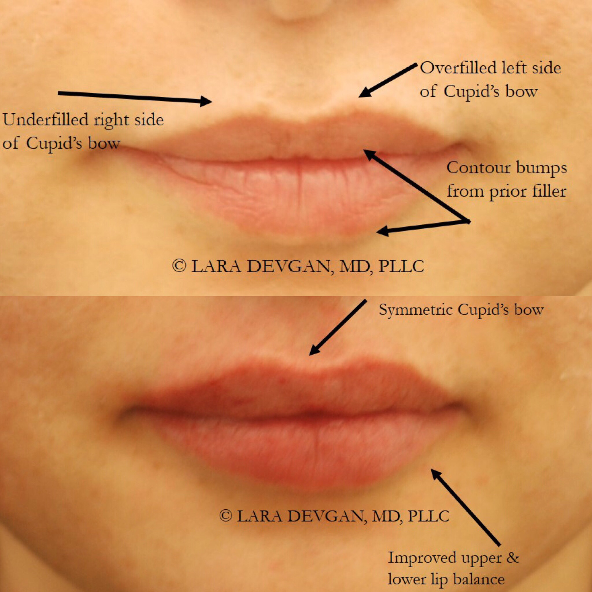 Actual patient of Dr. Devgan, before and after corrective lip augmentation