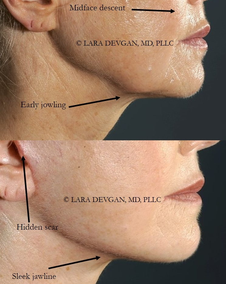 Actual patient of Dr. Devgan, before and after facelift (short-scar approach).