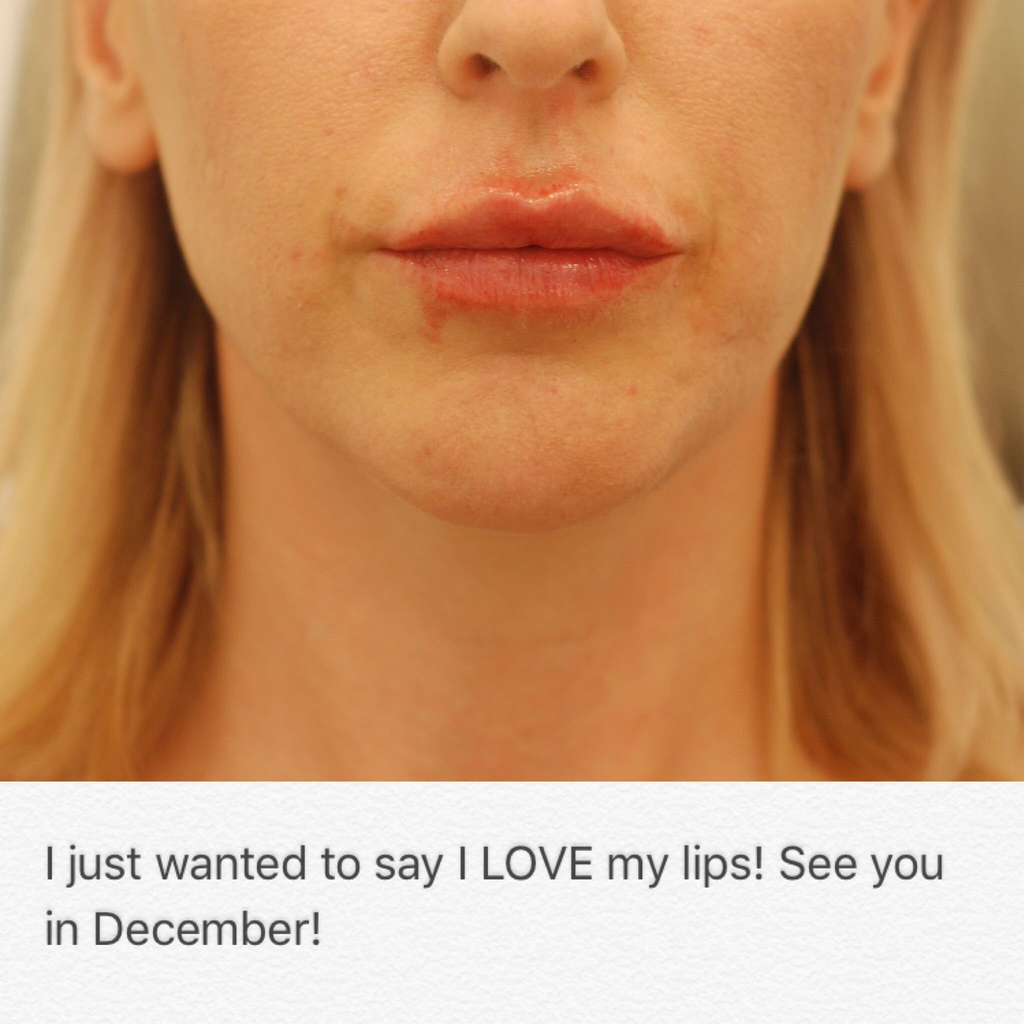 Message from a lip augmentation patient, 10/2016