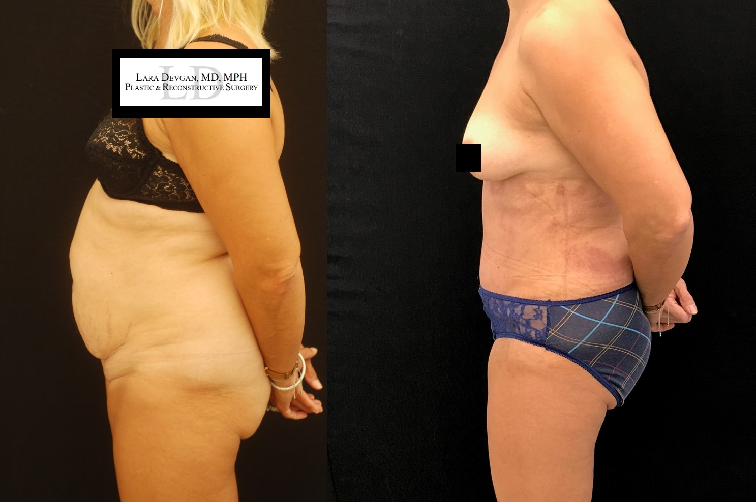Actual patient of Dr. Devgan, before and 10 days after tummy tuck (abdominoplasty)