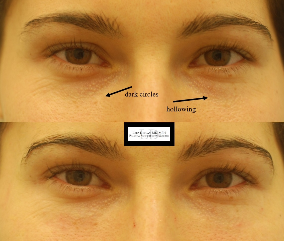 Actual patient of Dr. Devgan, before and after tear trough augmentation