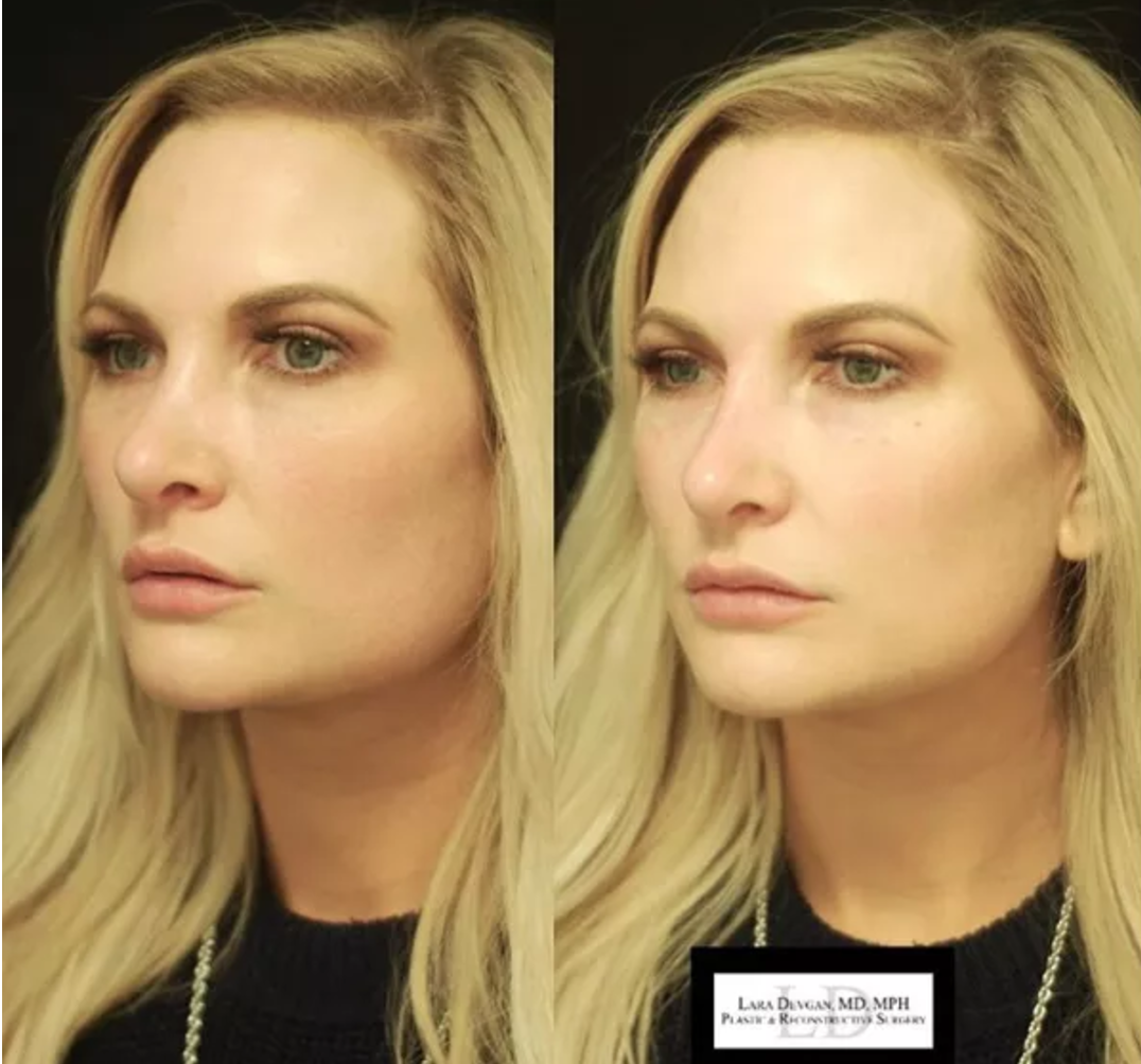 Before nonsurgical rhinoplasty (left), and after nonsurgical rhinoplasty (right)