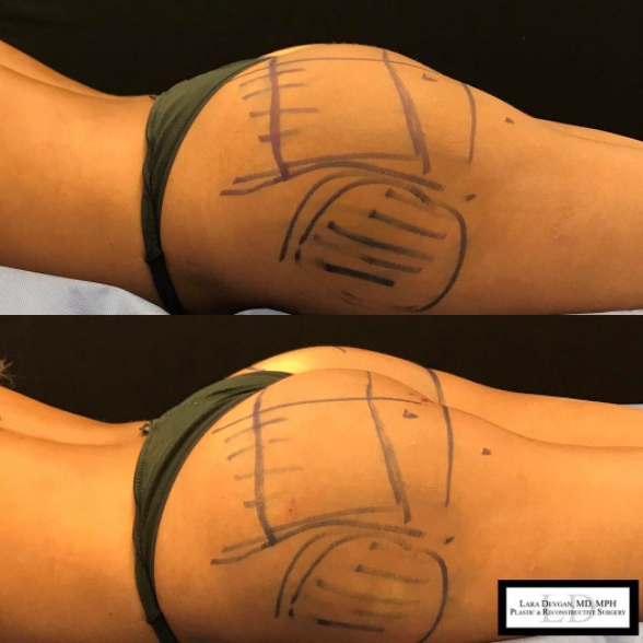 An immediate before and after picture following a non-surgical butt augmentation procedure