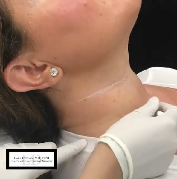 Dr. Devgan first creates marks in the horizontal necklines for accurate placement of injectables