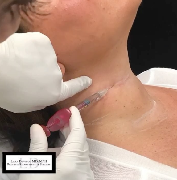 Here, Dr. Devgan is using her micro-droplet injectable technique