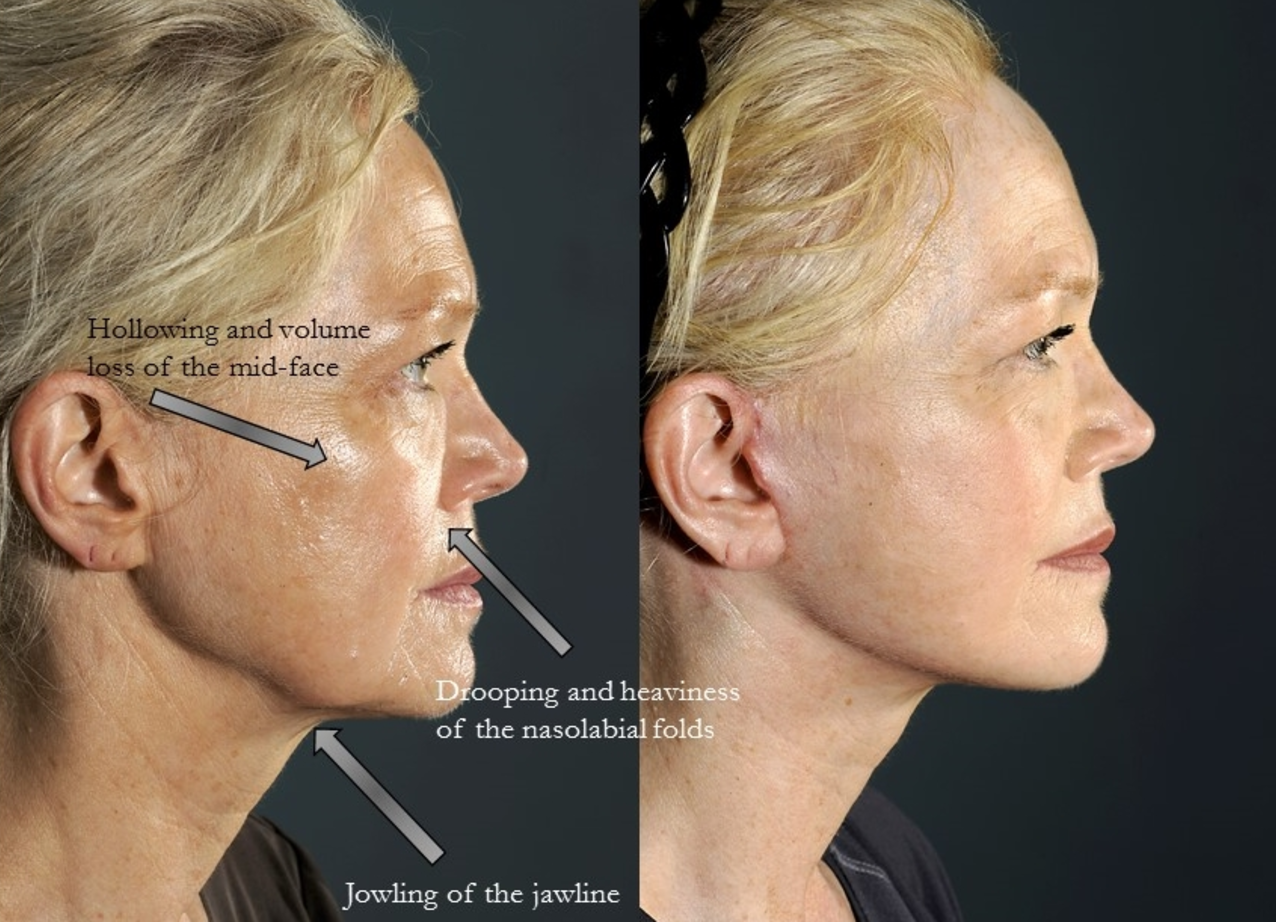 Before (left), after (right).Actual patient of Dr. Devgan