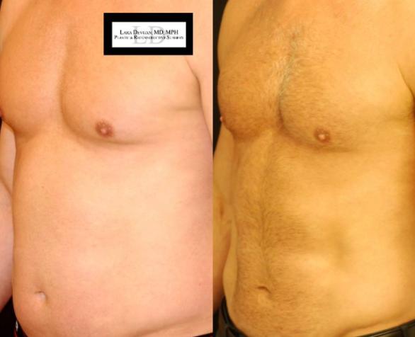 Abdominal etching procedure performed by Dr. Devgan