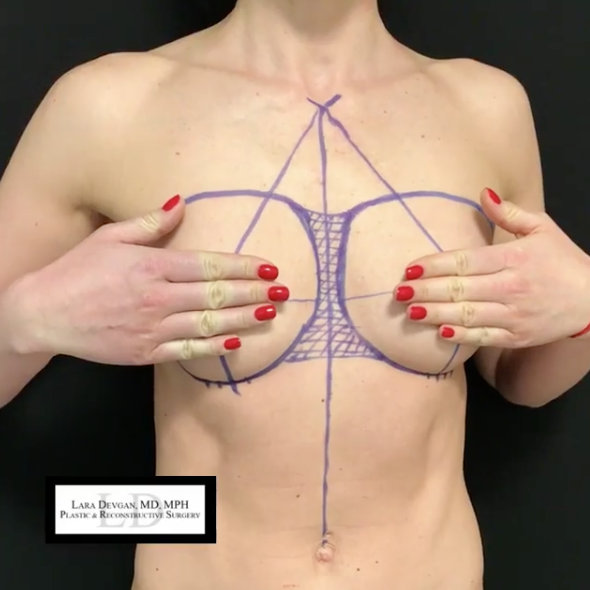 Pre-operative planning for breast augmentation patient