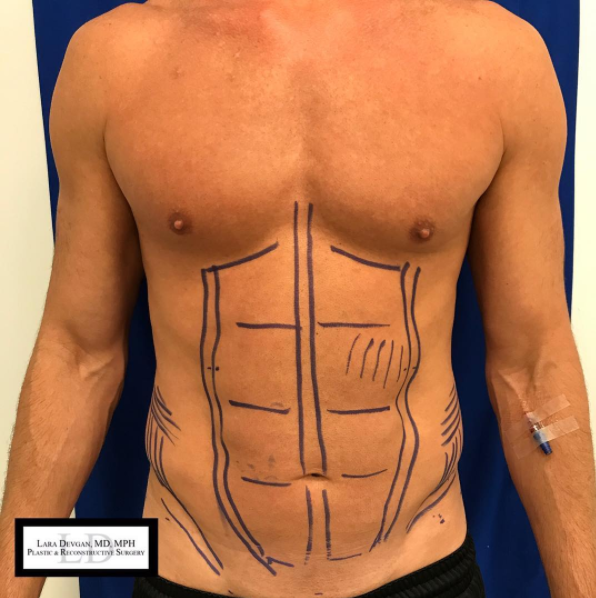 Pre-operative planning for abdominal etching/lipo-sculpture patient