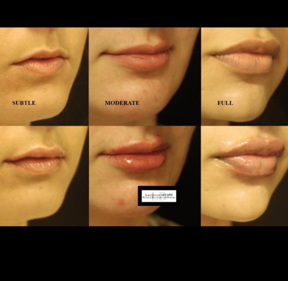 Different lip shapes and sizes are given different treatments, depending on what the patient is looking for
