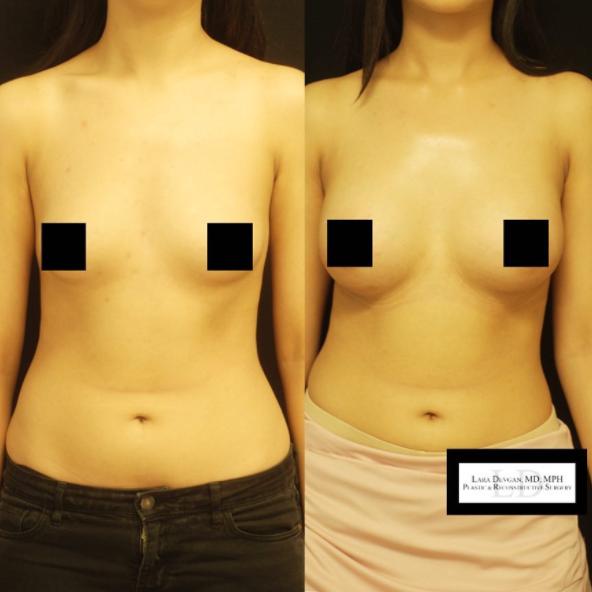 Breast augmentation by Dr. Devgan