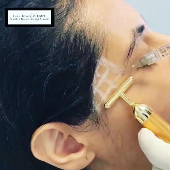 Patient of Dr. Devgan receiving temporal hollow fillers