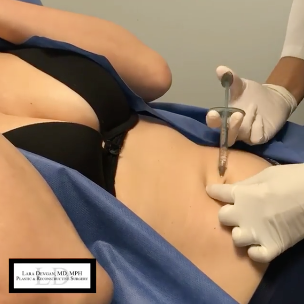 Belly button correction with the use of fillers