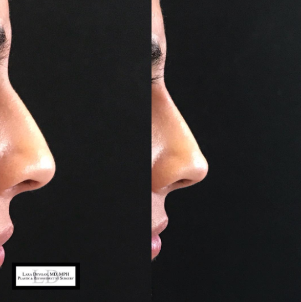 Dorsal hump and cleffed tip correction