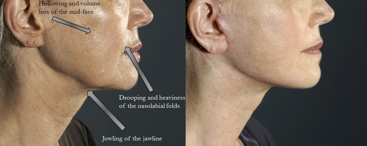 Before (left), and after facelift/necklift procedure (right).