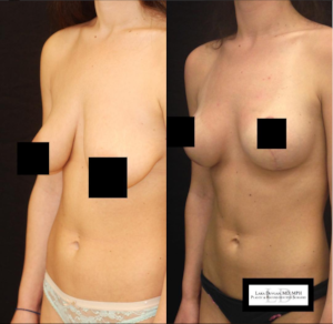 Dr. Devgan's before and after of breast augmentation.