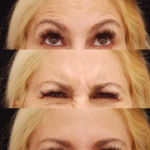 Dr. Devgan Botox patient