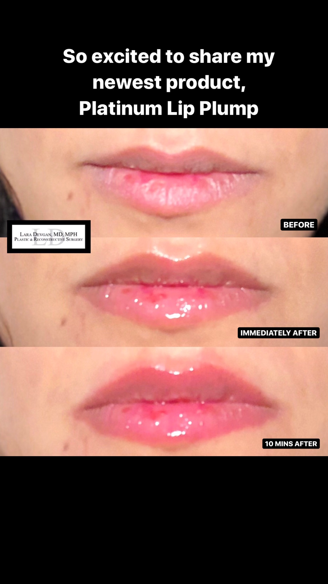 My own before and after photos with Platinum Lip Plump