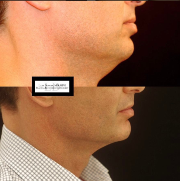 Male patient with excess under-chin skin.
