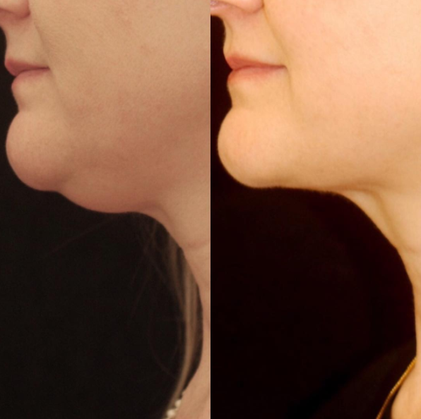 Female patient with excess under-chin skin.