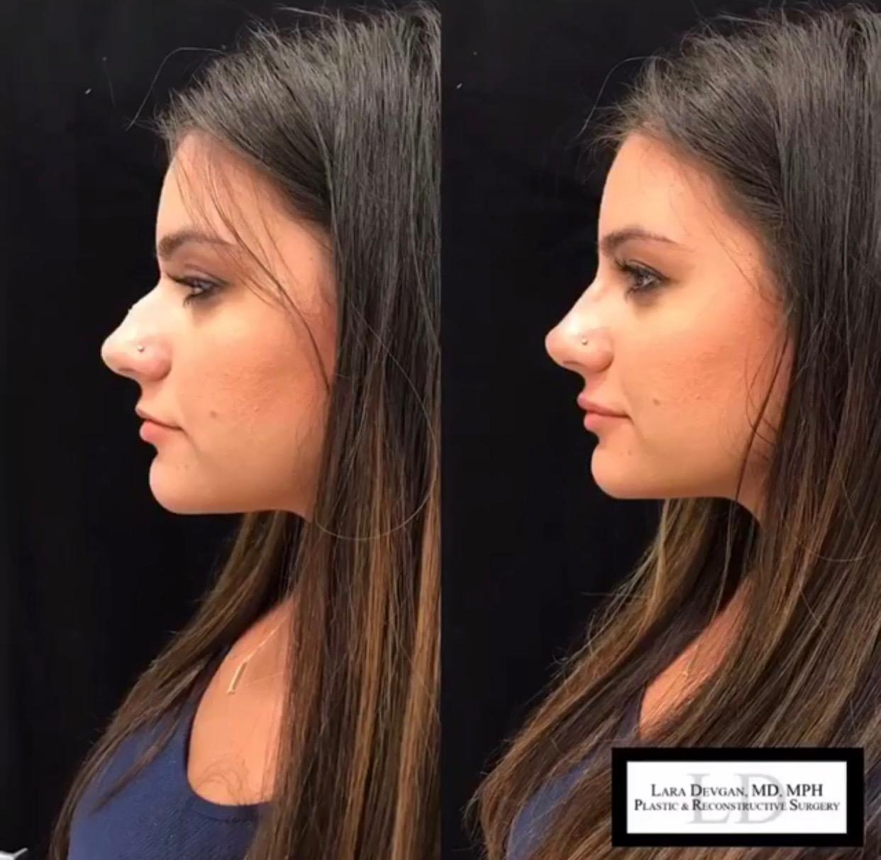 Striking result achieved through a non-surgical rhinoplasty, a signature Dr. Devgan procedure.
