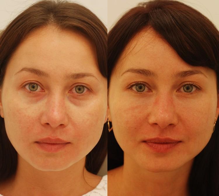 Actual patient of Dr. Devgan, before and after tear trough augmentation