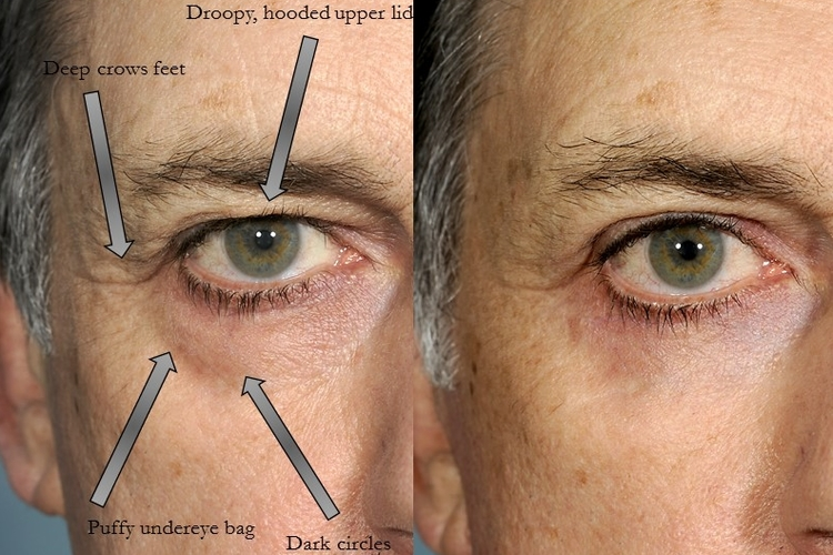 Actual patient of Dr. Devgan, before and after upper and lower eyelid blepharoplasty surgery.