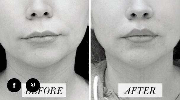 (Before and after photos of actual patient of Dr. Devgan)   BEFORE: This 48-year-old patient had been getting fillers in her lips, however felt they gave her the appearance of a projected upper lip. She desired a more natural looking fullness to her upper lip.   AFTER:  Photo taken three weeks post-op of an upper lip lift. She has a fuller upper lip and more defined Cupid's bow, ultimately achieving the natural fullness she desired.  Lip lifts are a long term option in enhancing the fullness and the definition of the upper lip.  Click  here  to read the full article.
