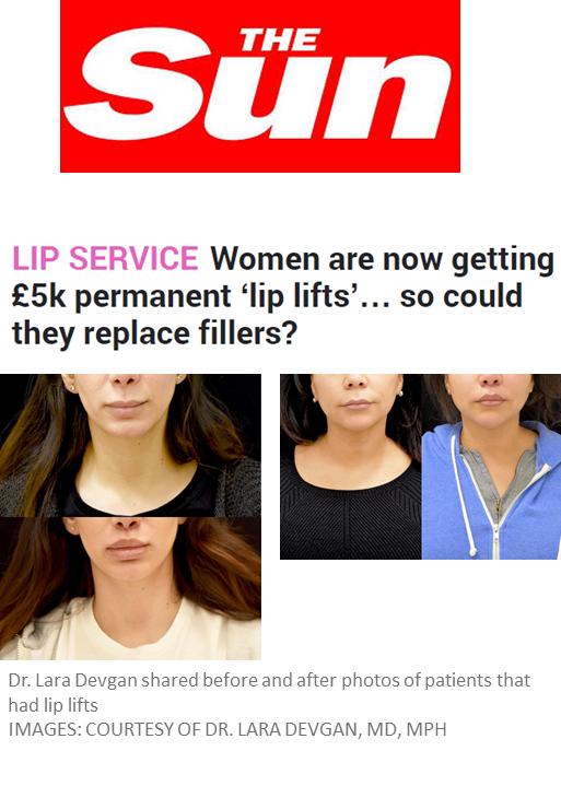 The Sun, a United Kingdom newspaper, features Dr. Devgan's lip lift