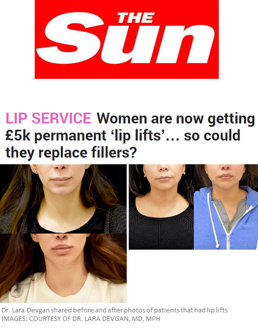 Dr. Devgan's lip lift featured in The Sun, a United Kingdom newspaper.  A lip lift is a surgical approach to improving the distance between the nose and the mouth (the philtrum). Lip lift surgery takes about 20 minutes, is done under local anesthesia, and significantly improves heaviness of the upper lip and philtral distance. It has helped many patients break the cycle of lip fillers.