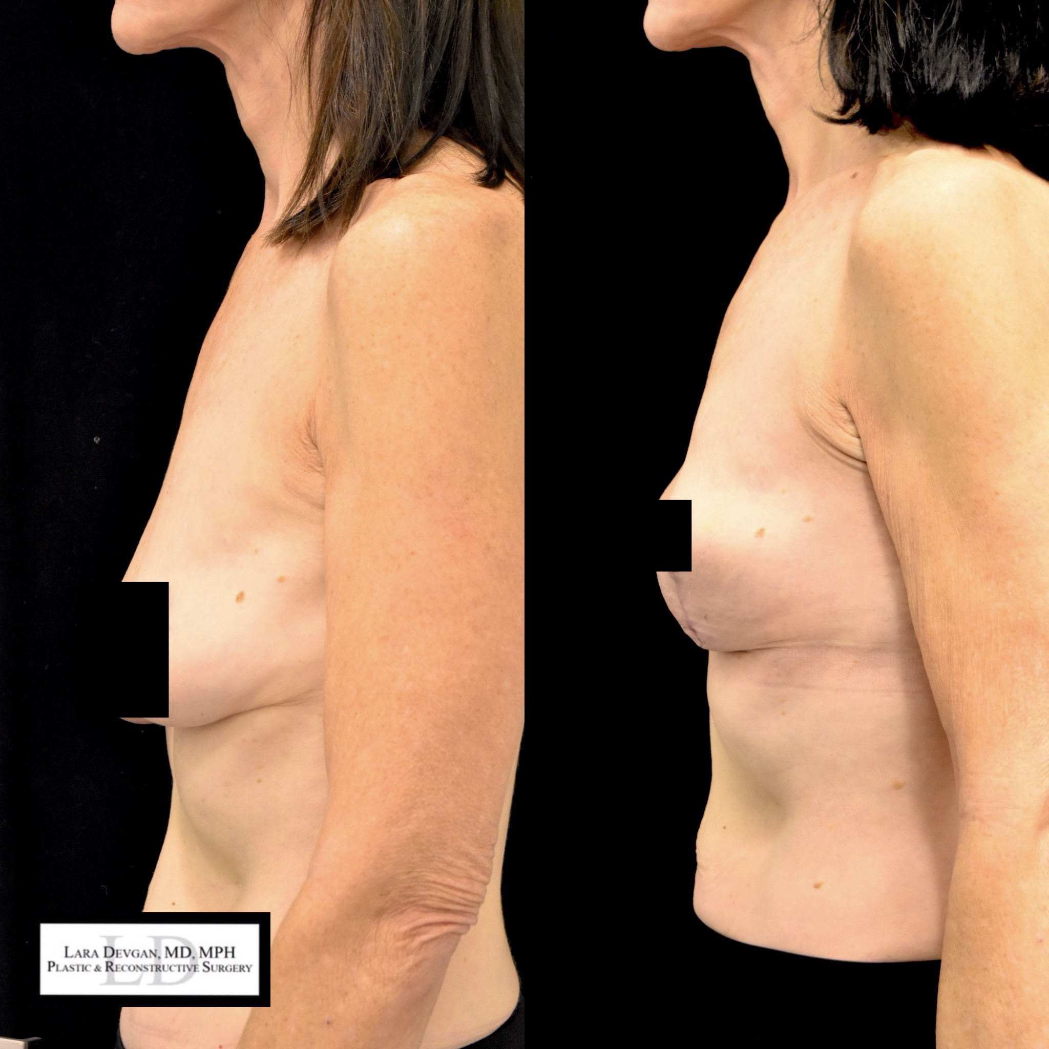 Actual patient of Dr. Devgan, who is in her 60s, before and 6 weeks after breast lift (mastopexy). Scars are immature and will fade to nearly invisible by 1 year.