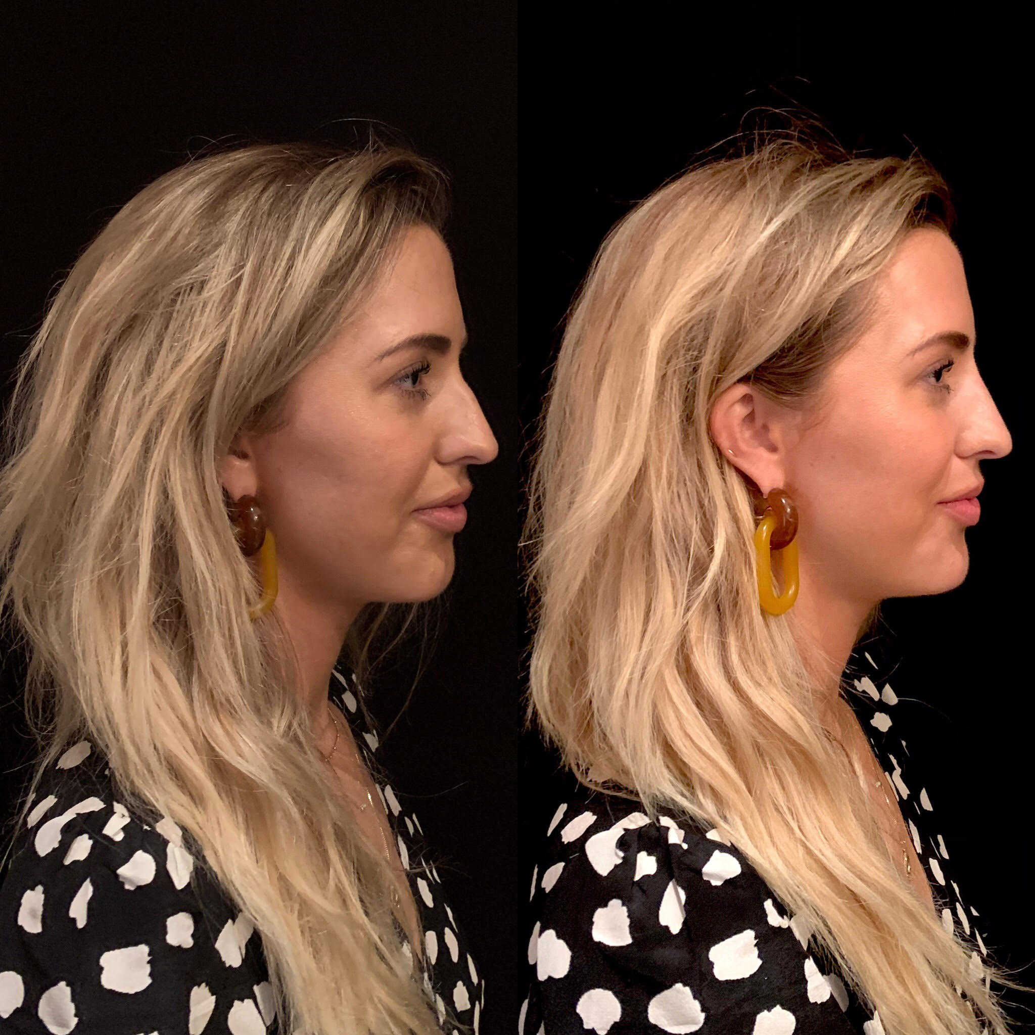 This is the Before and After for our model who received a nonsurgical rhinoplasty and chin augmentation. Directly after the procedure we are able to see instant results.