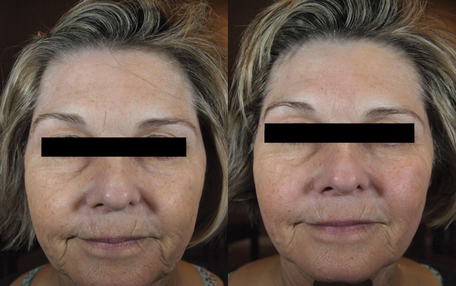 face skin tightening.jpg
