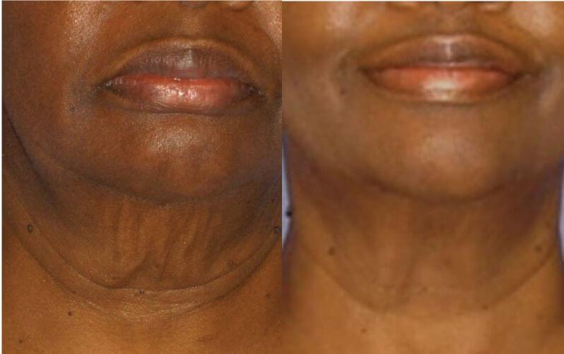 skin tightening venus.jpg