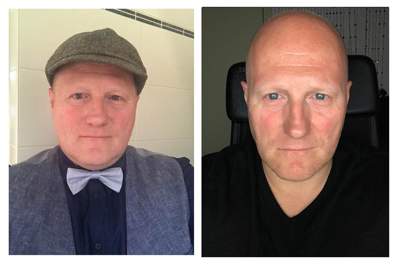 Resultaat na 3 maand  -20 kg