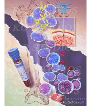 Hematological Malignancies