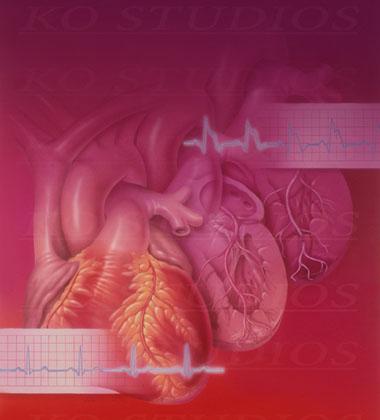Coronary Heart Disease Progression