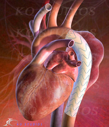 Thoracic Aortic Graft