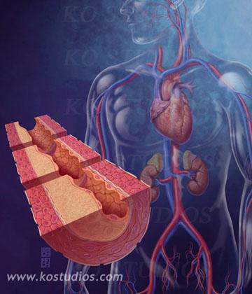 Coronary heart disease3