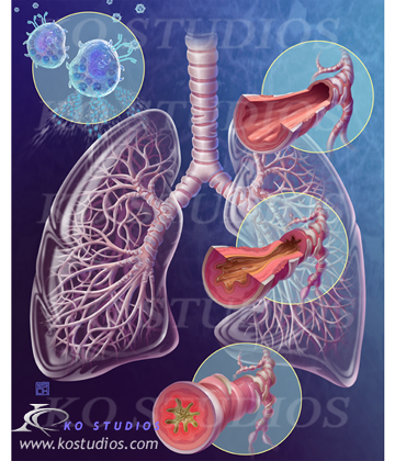 Asthma and Histamines