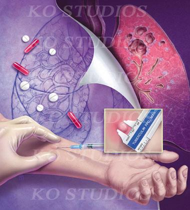 Tuberculosis Testing 3